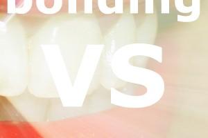 bonding vs veneers