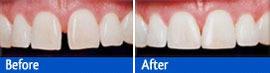 dental bonding of teeth