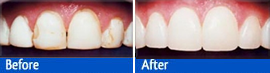 stained teeth fixed with tooth bonding