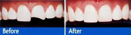tooth bonding bonding teeth