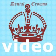 video dental crowns