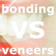 bonding vs veneers